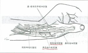 ドケルバン 解剖