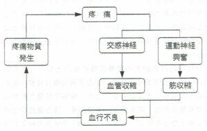 図3 疼痛 悪循環