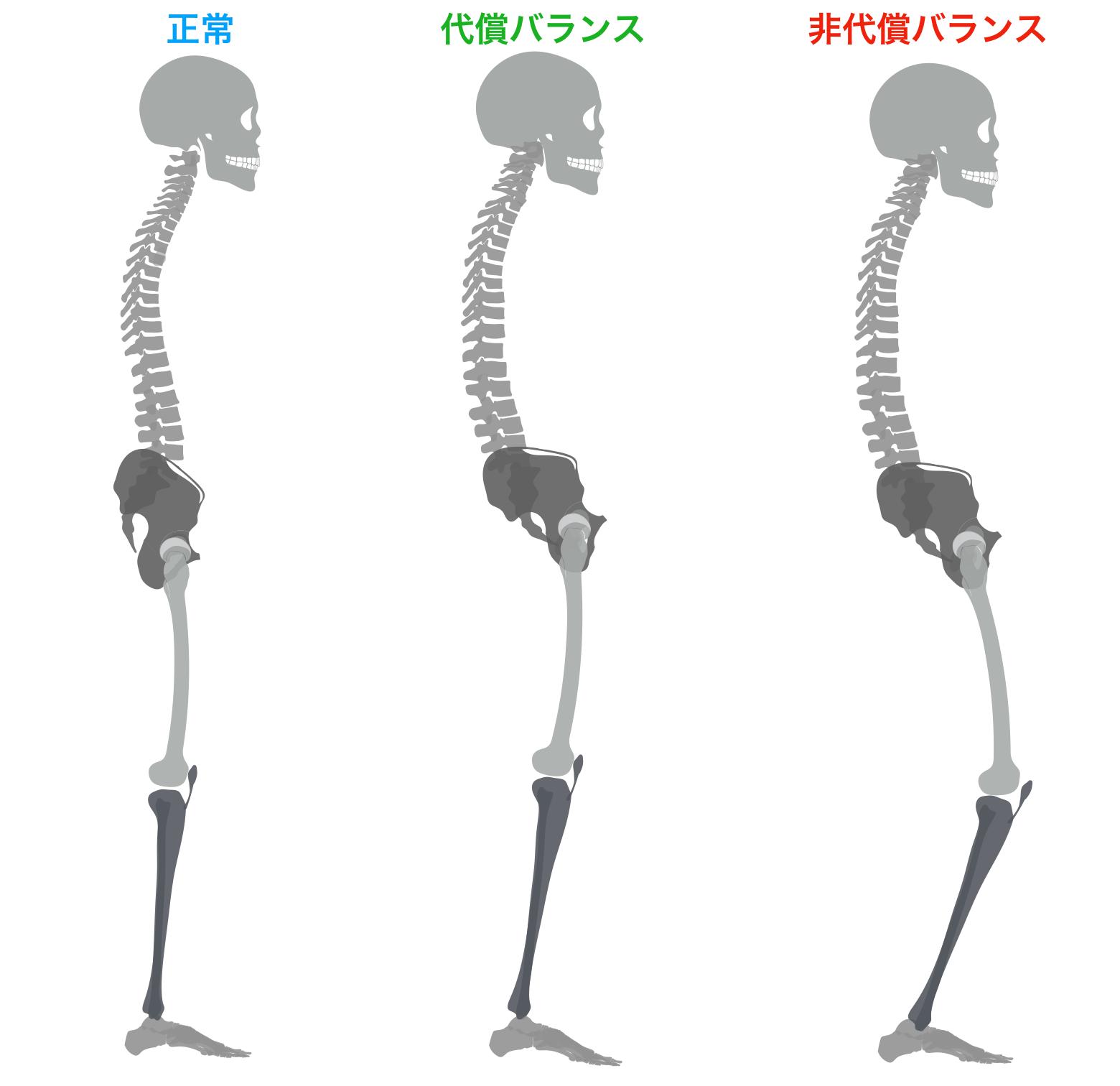 後継 骨盤