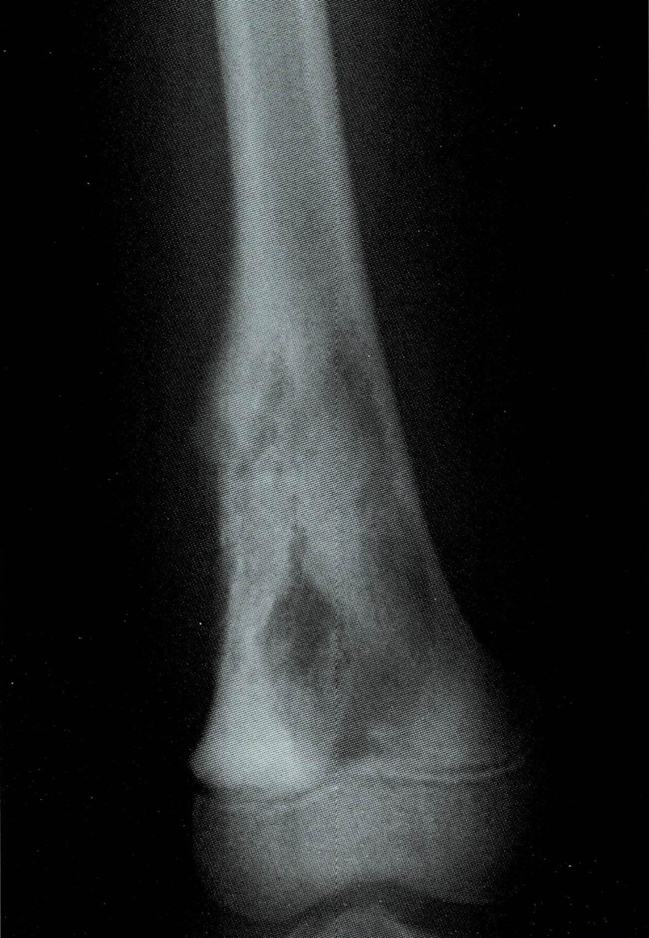 症状 骨 肉腫