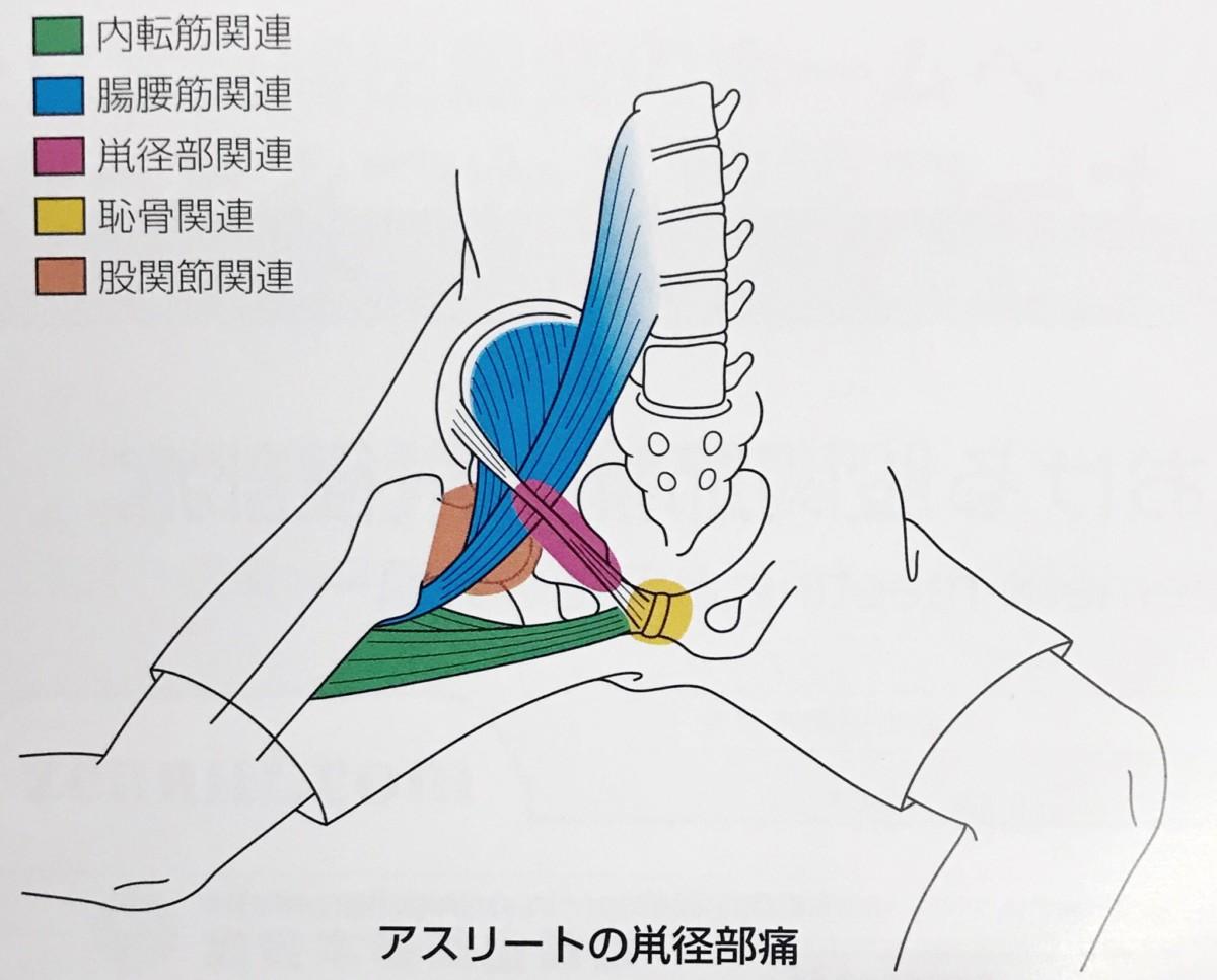 ヘルニア 屈曲 位 腰椎椎間板ヘルニア/Advice/日常生活上の注意